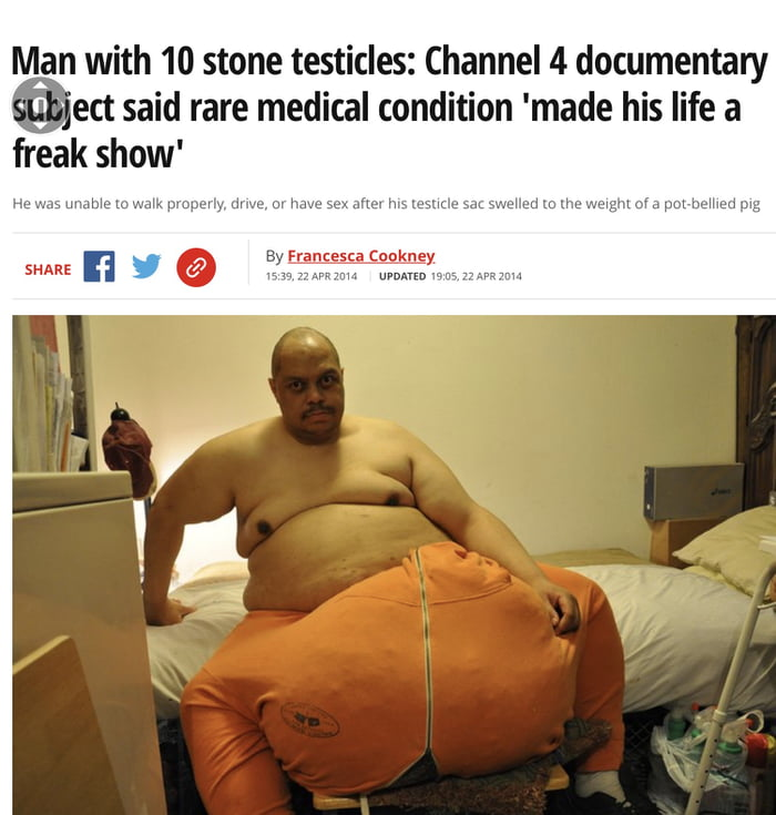 Man with 10 stone testicles