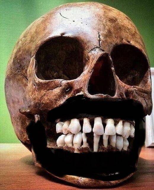 This Is A Photo Of A Child S Skull Shown With Adult Teeth Waiting